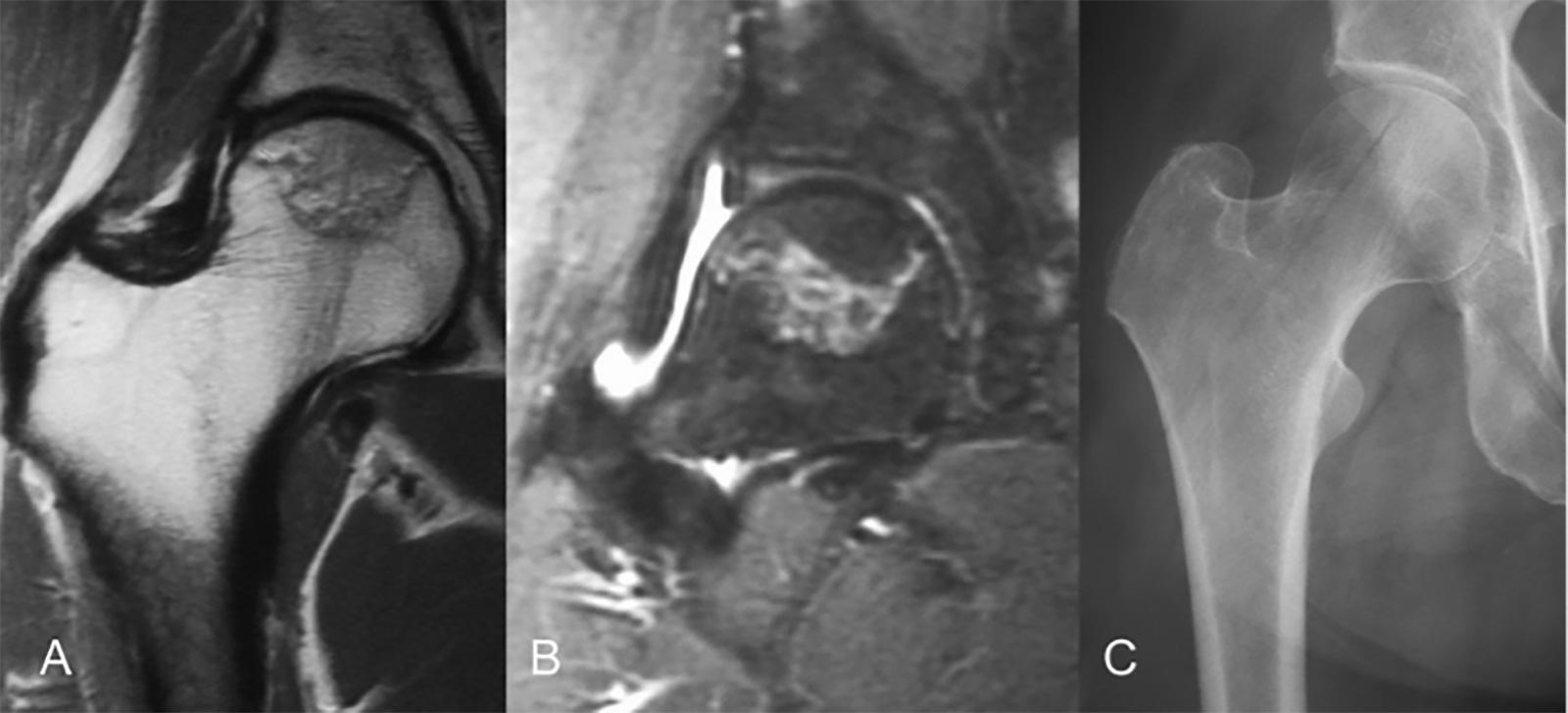 Abb. 1-2: MRT und Röntgenbild einer Osteonekrose Stadium 2A nach Ficat