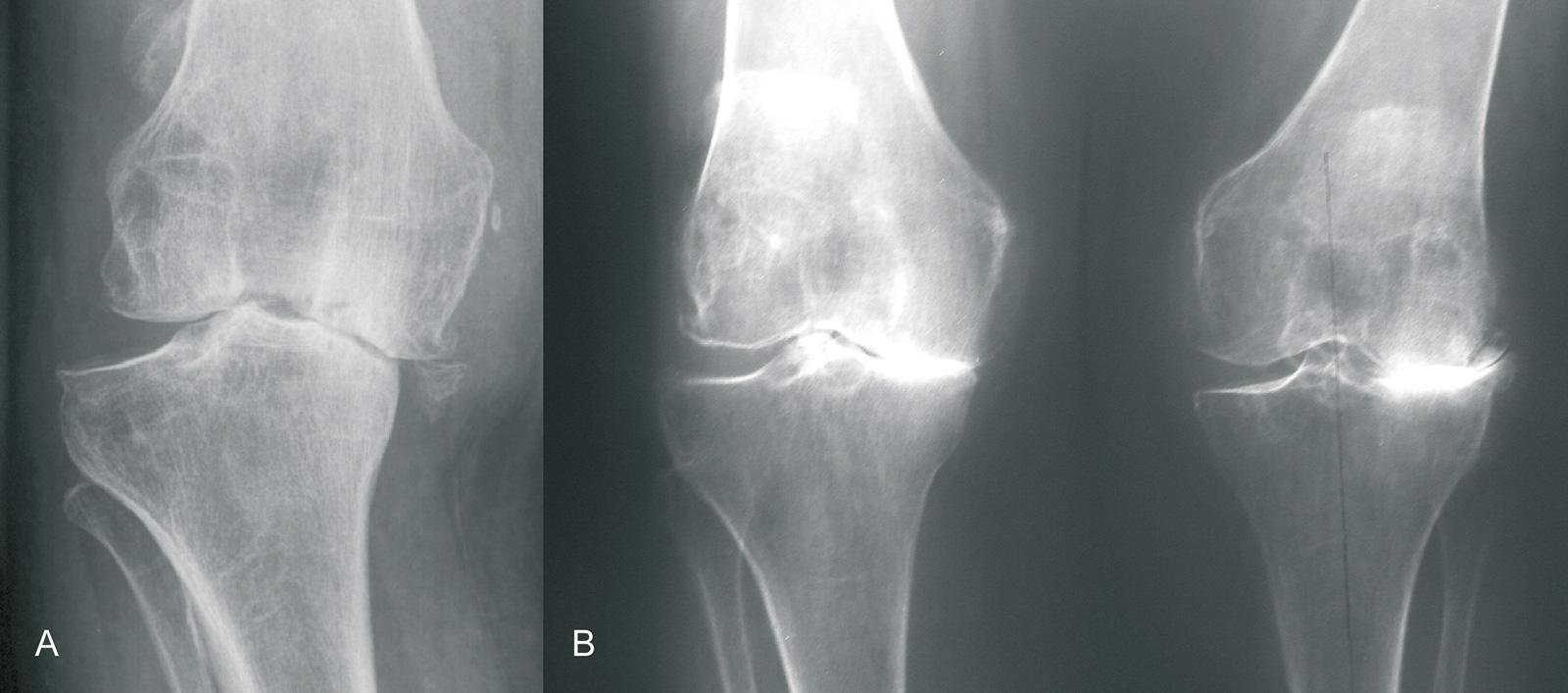 Abb. 1-29: Varusgonarthrose mit Subluxation des Femurs bei Insuffizienz des lateralen Seitenbandes (A), Windschlagdeformität: Kombination aus Varusgonarthrose (rechtes Knie) und Valgusgonarthrose (linkes Knie) (B)