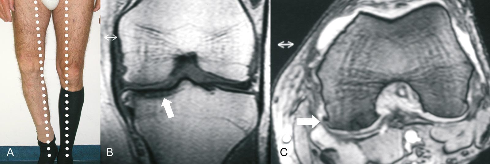Abb. 1-31: Varusgonarthrose rechts (A), degenerative Veränderungen (Arthrose) im MRT (B,C)