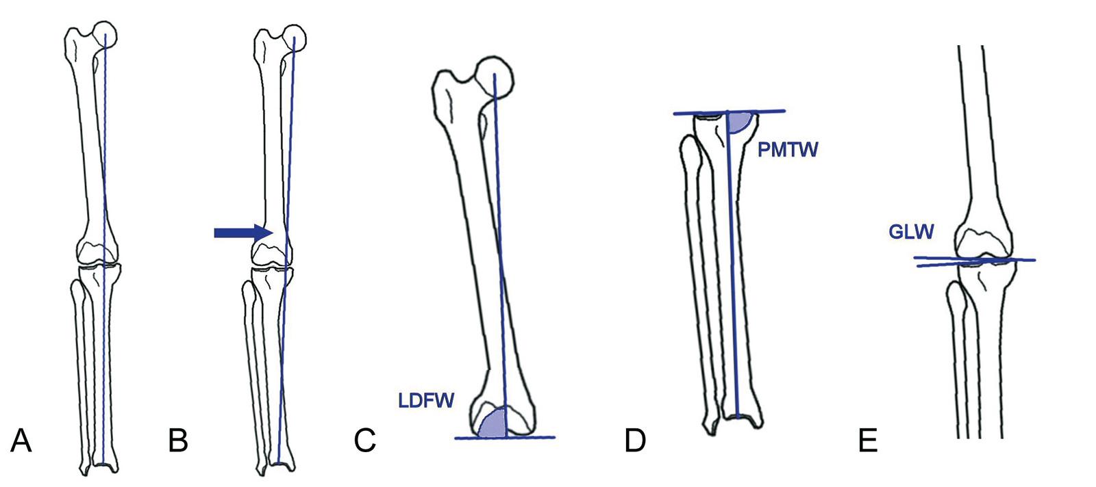 Abb. 1-33: Analyse der Deformität: normale mechanische Beinachse (A), Varusfehlstellung (B), lateraler distaler Femurwinkel (C), proximaler medialer Tibiawinkel (D) und Gelenklinienwinkel (E)