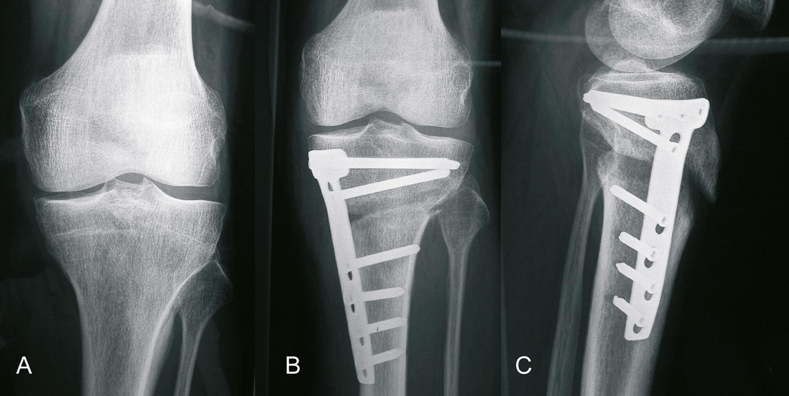 Abb. 1-36: Aufklappende Osteotomie mit einer winkelstabilen Platte (Tomofix-Platte) (Eigentum des Instituts für Klinische Radiologie der Universität Münster)