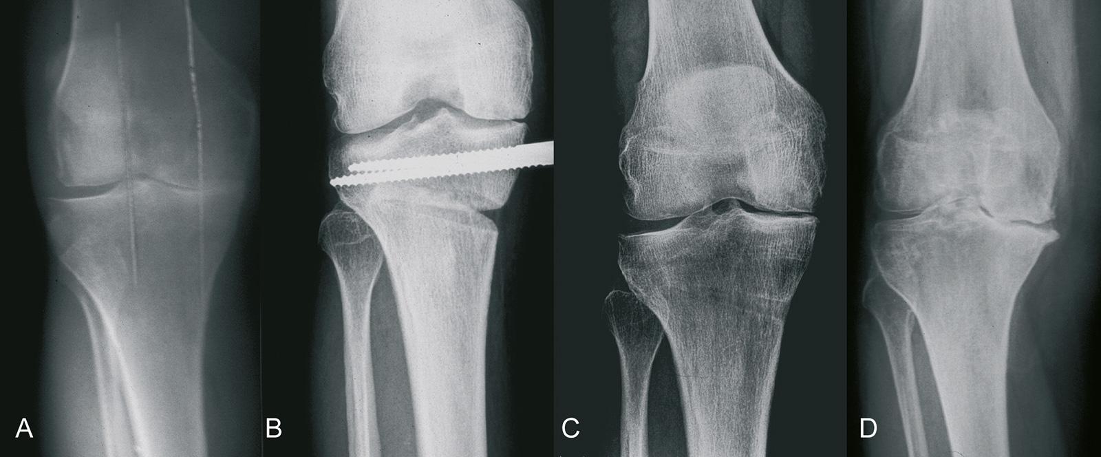 Abb. 1-37: Zum Zeitpunkt der Hemikallotasis (B) besteht bereits eine ausgeprägte Arthrose mit einem Knochensubstanzverlust von >2mm (A), nach Entfernung des Fixateur (C) und 3 Jahre später (D): fortschreiten der Arthrose im medialen Kompartiment (Eigentum