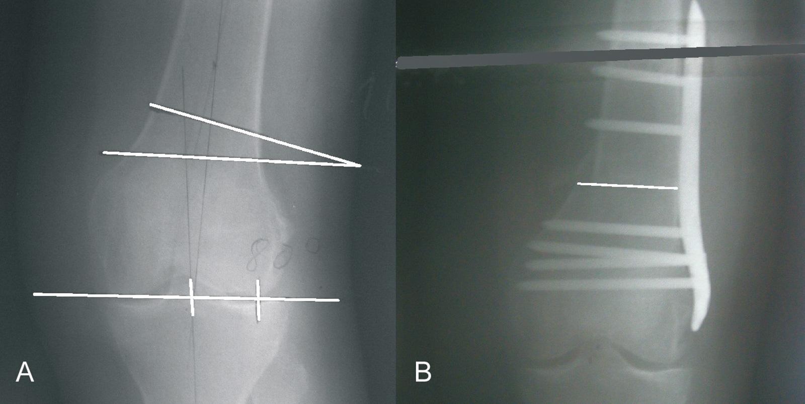 Abb. 1-39: Varisierende zuklappende Femurosteotomie mit einer Tomofix-Platte