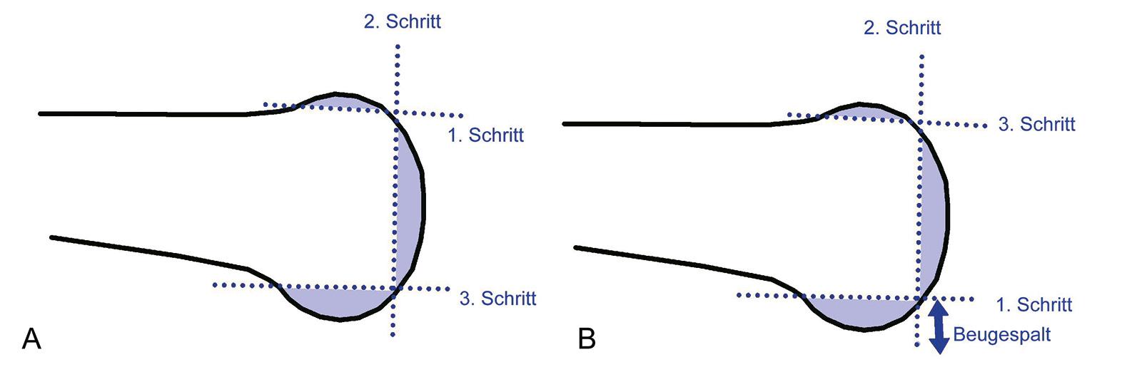 Abb. 1-41: Femurresektion mit einem anterioren Referenzpunkt (A) und mit einem posterioren Referenzpunkt (B)