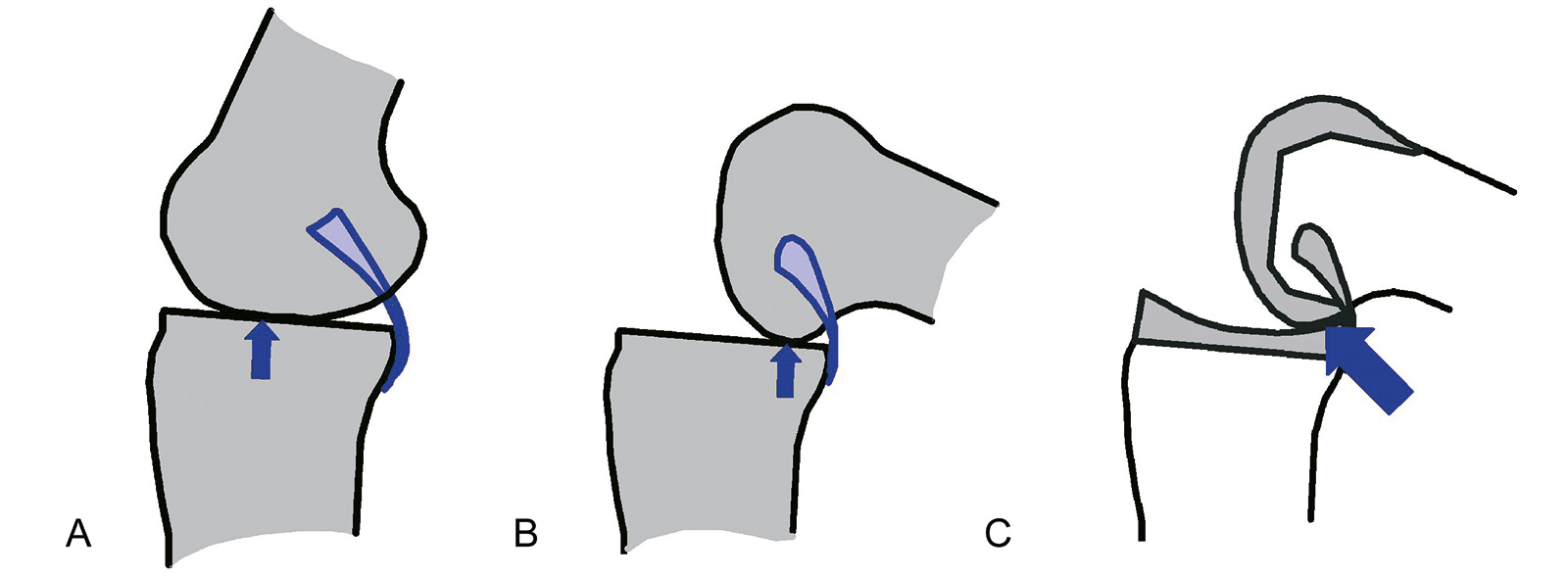 Abb. 1-42: Flexion führt zu einem Rückwärtsrollen und der Kontaktpunkt zwischen Femur und Tibia wird nach dorsal verlagert (A,B). Konflikt zwischen Konformität der Gelenkflächen und Rückwärtsrollen (C)