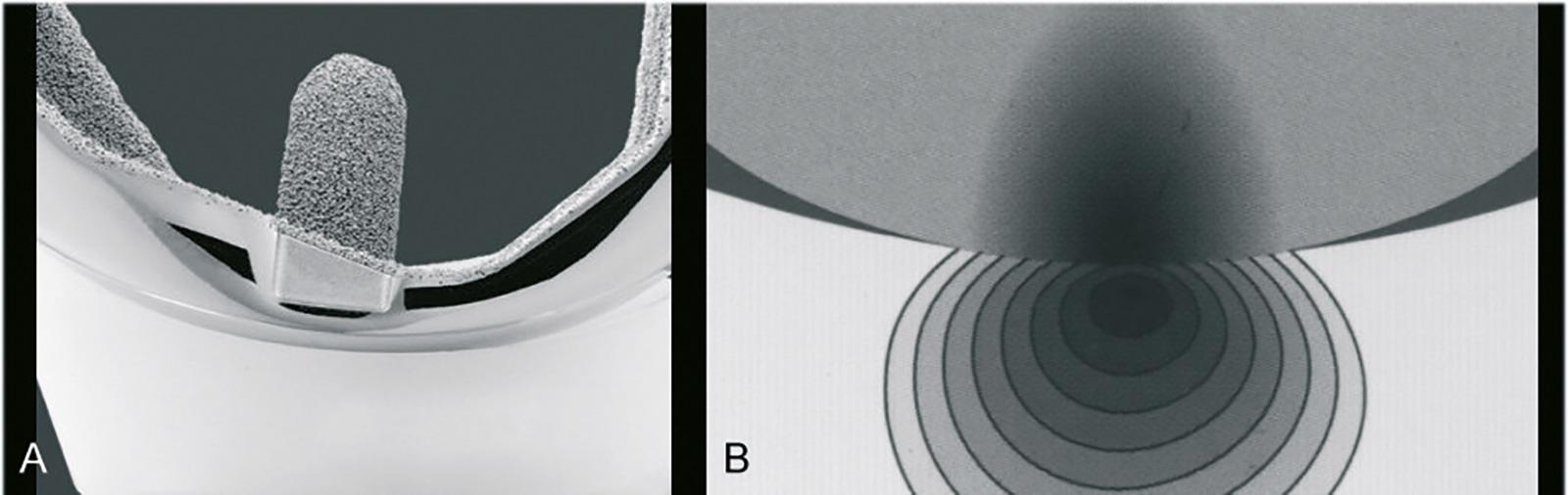 Abb. 1-43: Das konforme Polyethylenplateau der LCS-Knieprothese (A) im Vergleich zu einem flachen Polyethylenplateau mit geringer Kontaktfläche (B) (Mit freundlicher Genehmigung DePuy Orthopädie GmbH)