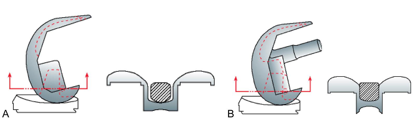 Abb. 1-44: Vergleich des Polyethylenzapfens einer posterior stabilisierten (A) und einer geführten (constrained) Knieprothese (B) am Beispiel der Genesis II Knieprothese (Smith & Nephew GmbH)