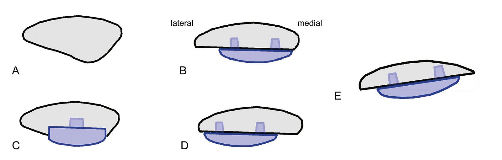Abb. 1-45: Patellarückflächenersatz (A): Inlay-Technik (C) und Onlay-Technik (B,D,E). Die Medialisierung der Patella (B) ist günstiger als eine laterale Ausrichtung (D) der Patellakomponente. Eine asymmetrische Patellaresektion sollte in jedem Fall vermie