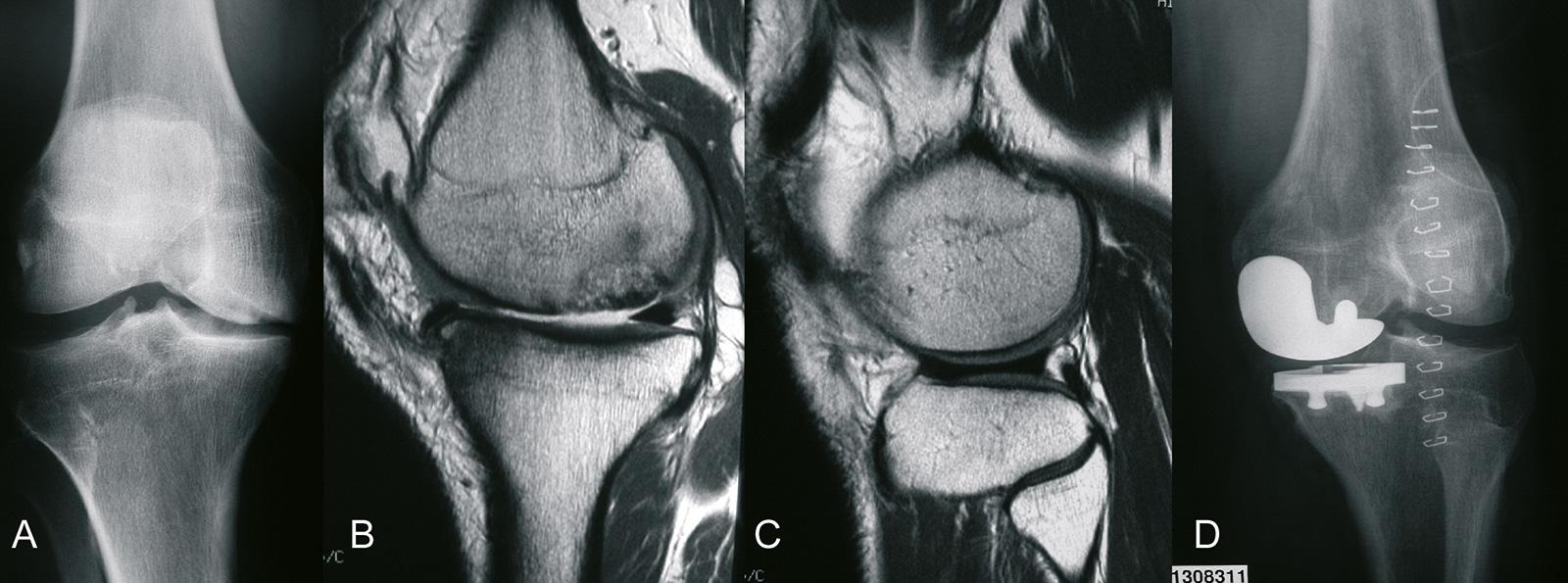 Abb. 1-47: Mediale Gonarthrose mit Verschmälerung des medialen Gelenkspaltes (A,B) bei gleichzeitig intaktem lateralem Gelenkspalt (C) erfolgt die Implantation einer unikondylären Prothese (D)