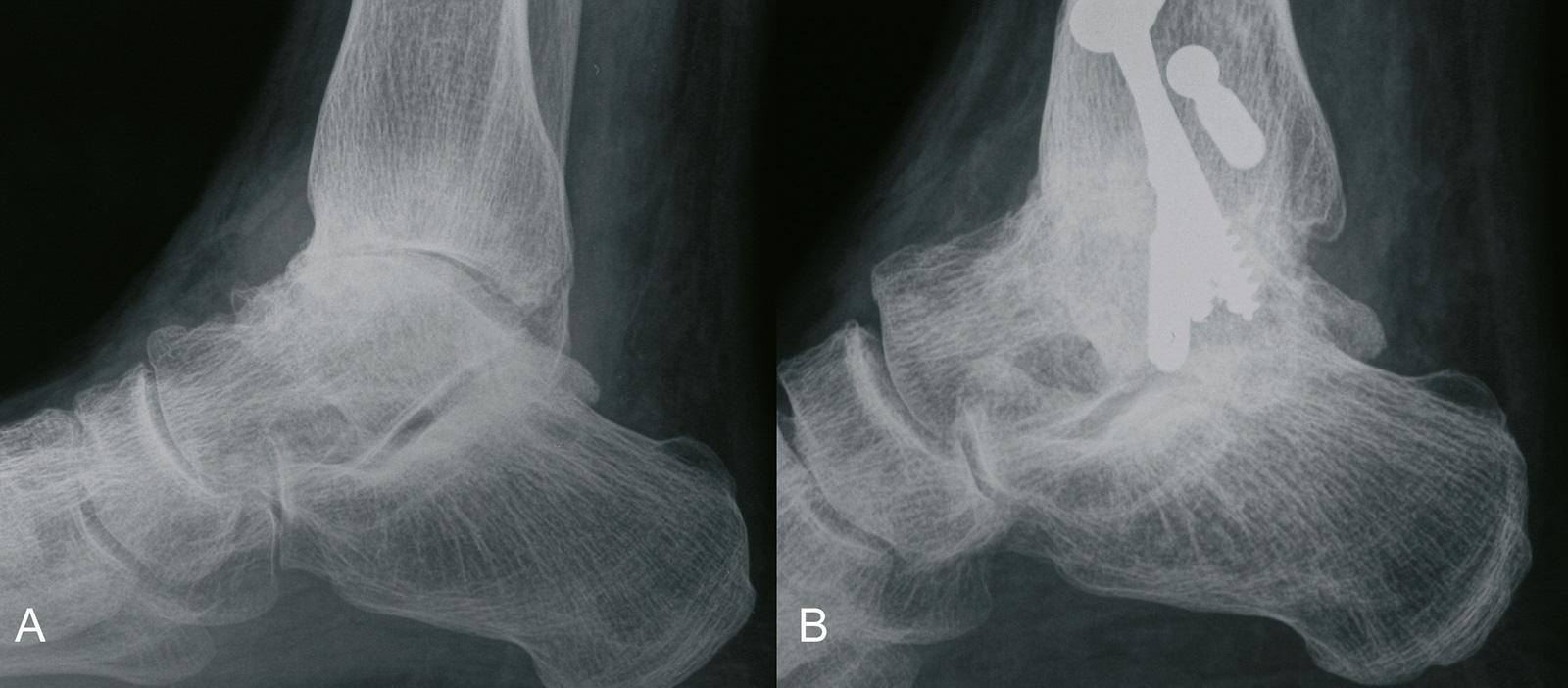 Abb. 1-49: Arthrose des oberen Sprunggelenks (A), 6 Jahre nach oberer Sprunggelenksarthrodese: zunehmende Arthrose der angrenzenden Fußgelenke (B) (Eigentum des Instituts für Klinische Radiologie der Universität Münster)