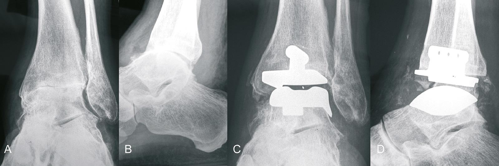 Abb. 1-50: Arthrose des oberen Sprunggelenks, Zustand nach Implantation einer zementfreien Sprunggelenksprothese (Eigentum des Instituts für Klinische Radiologie der Universität Münster)