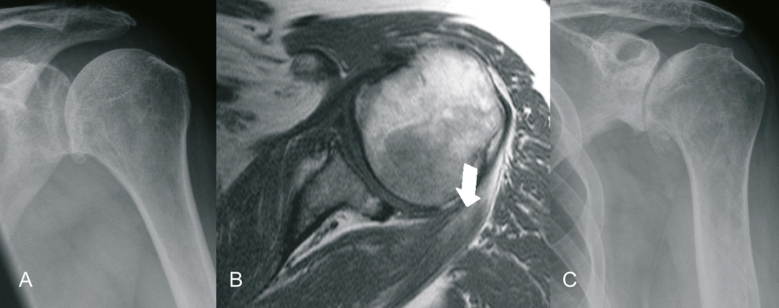 Abb. 1-51: Beginnende Arthrose mit Ausbildung eines inferioren Osteophyten (A) und geringer Subluxation nach posterior (B): im Verlauf kommt es zu einer Aufhebung des Gelenkspaltes und Vergrößerung der Osteophyten (C)