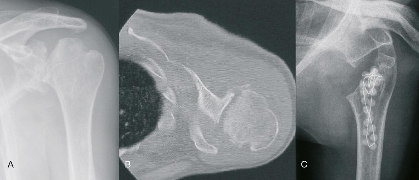 Abb. 1-53: Schultergelenksinfektion mit Destruktion des Gelenkknorpels (A,B): Débridement und Humeruskopfresektion zur Vorbereitung einer späteren Prothesenimplantation (C)
