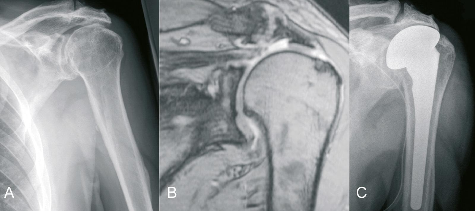 Abb. 1-54: Rotatorenmanschettenruptur mit Migration des Humeruskopfes nach cranial (A,B): Indikation für die Implantation einer Hemiprothese (C). Heute wird in dieser Situation in der Regel eine inverse Prothese bevorzugt