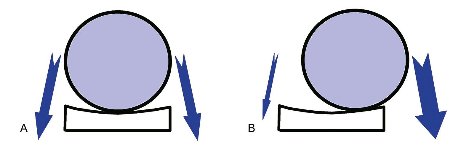 Abb. 1-57: Ein asymmetrischer Muskelzug führt zu einer exzentrischen Belastung der Glenoidkomponente