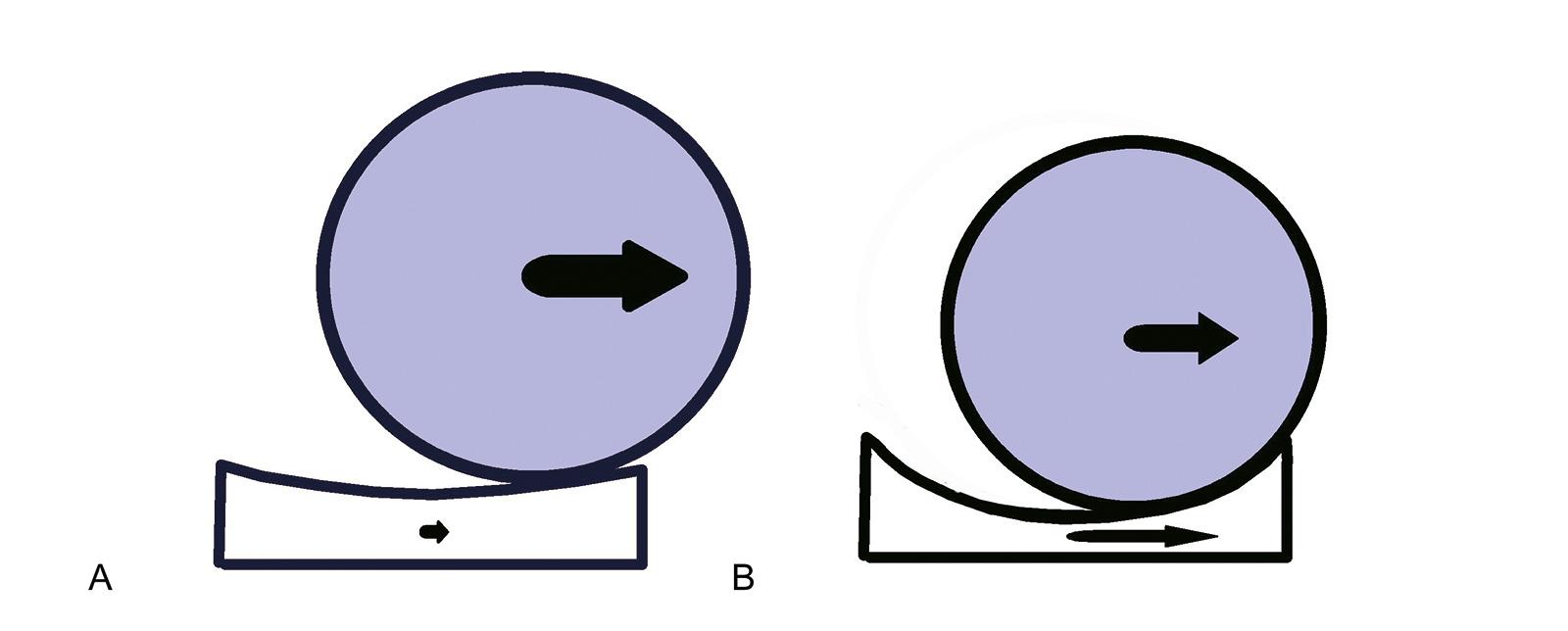 Abb. 1-58: Translationskräfte, die auf den Humeruskopf wirken, werden bei einer flachen Glenoidkomponente nicht auf das Glenoid übertragen (A). Bei einer stärkeren Konformität werden Kräfte in einem größeren Umfang auf die Pfanne und deren Knochen-Implant