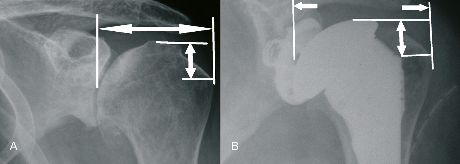 Abb. 1-59: Wiederherstellung der Humeruskopfhöhe und des Tuberculum-majus-Offset (A,B) ist von entscheidender Bedeutung für die postoperative Funktion