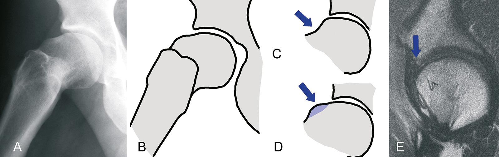 Abb. 1-6: Pistolengri -Deformität (A,B): der Verlust des O sets (D) führt zu einem Impingement mit sekundären Veränderungen des Labrums (E): bei erhaltenem O set bleibt ein Impingement aus (C)