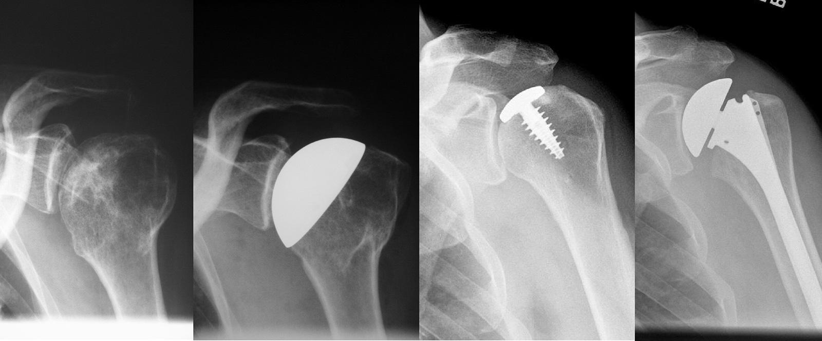 Abb. 1-60: Röntgenbild einer posttraumatische Arthrose (A). Die Therapie erfolgte mit einem Oberflächenersatz (B). Therapie eines traumatischen Knorpeldefekts mit einem partiellen Oberflächenersatz (C), der im Verlauf zu einer Hemiprothese (D) gewechselt