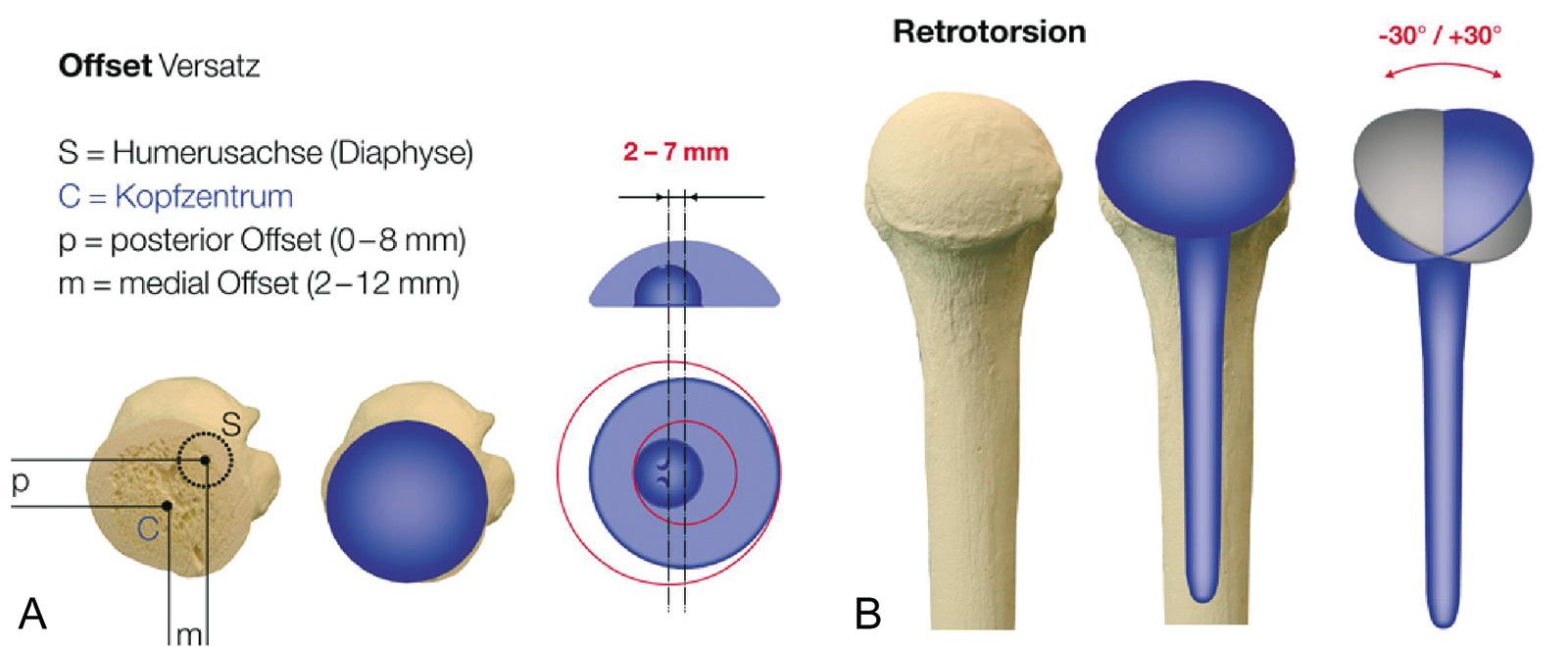 Abb. 1-61: Variable Einstellung des Offsets und der Retrotorsion des Humeruskopfes am Beispiel der Anatomical Shoulder Prothese (Mit freundlicher Genehmigung der Centerpulse Orthopedics Ltd. a Zimmer Company)