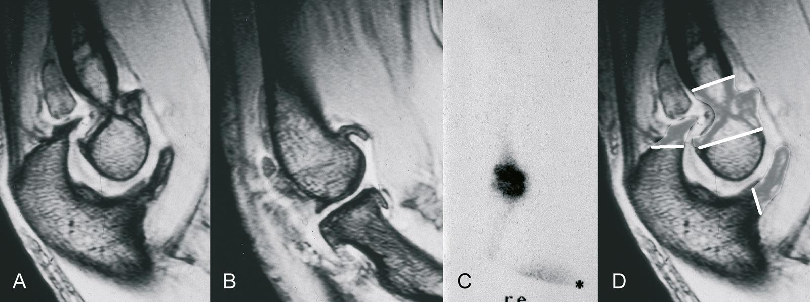 Abb. 1-66: Arthrose des Ellenbogengelenks im MRT (A,B) und in der Knochenszintigrafie (C). Schema der ulnohumeralen Gelenkplastik (D)