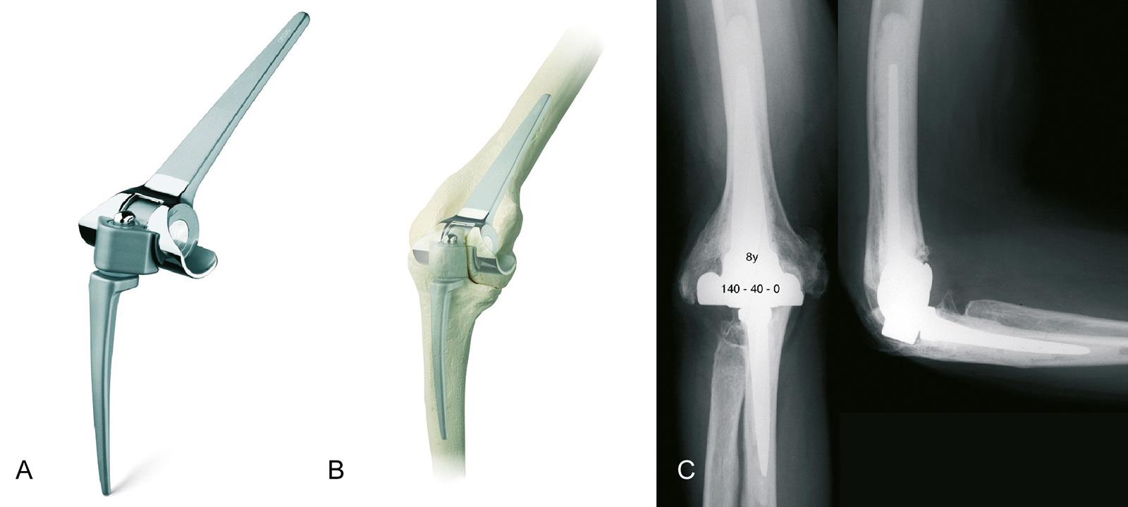 Abb. 1-68: GSB III Prothese: Implantat, Schemazeichnung und Röntgenbild nach Implantation (Mit freundlicher Genehmigung der Centerpulse Orthopedics Ltd. a Zimmer Company)