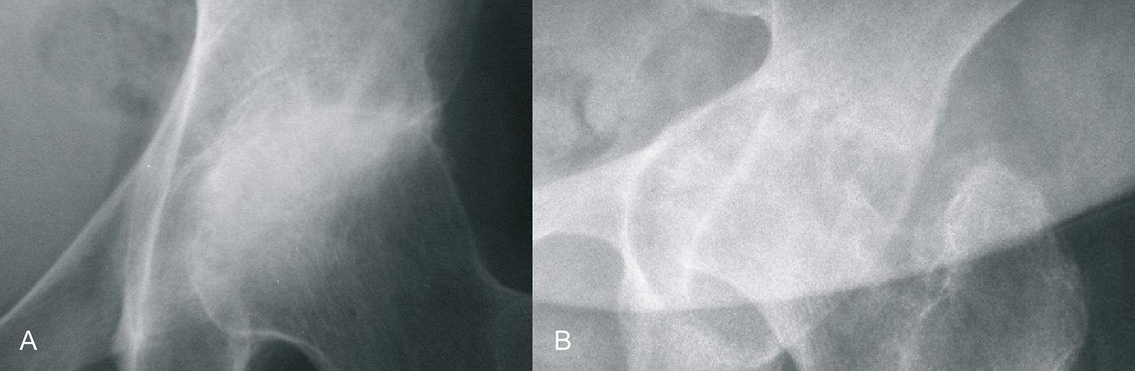 Abb. 1-69: Zirkumferenter Verlust des Gelenkspaltes und periartikuläre Osteopenie bei einem Patienten mit rheumatoider Arthritis (A). Im Verlauf führt eine massive Synovialitis zur Zerstörung des Hüftkopfes und Protrusion in das Acetabulum (B)