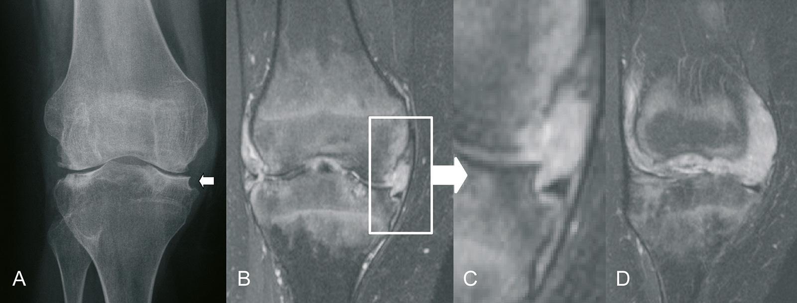 Abb. 1-70: Synovialitis mit Arrosion des Tibiaplateaus und Verschiebung des Meniskus in die Arrosion (A-C), ausgedehnter Pannus (D)