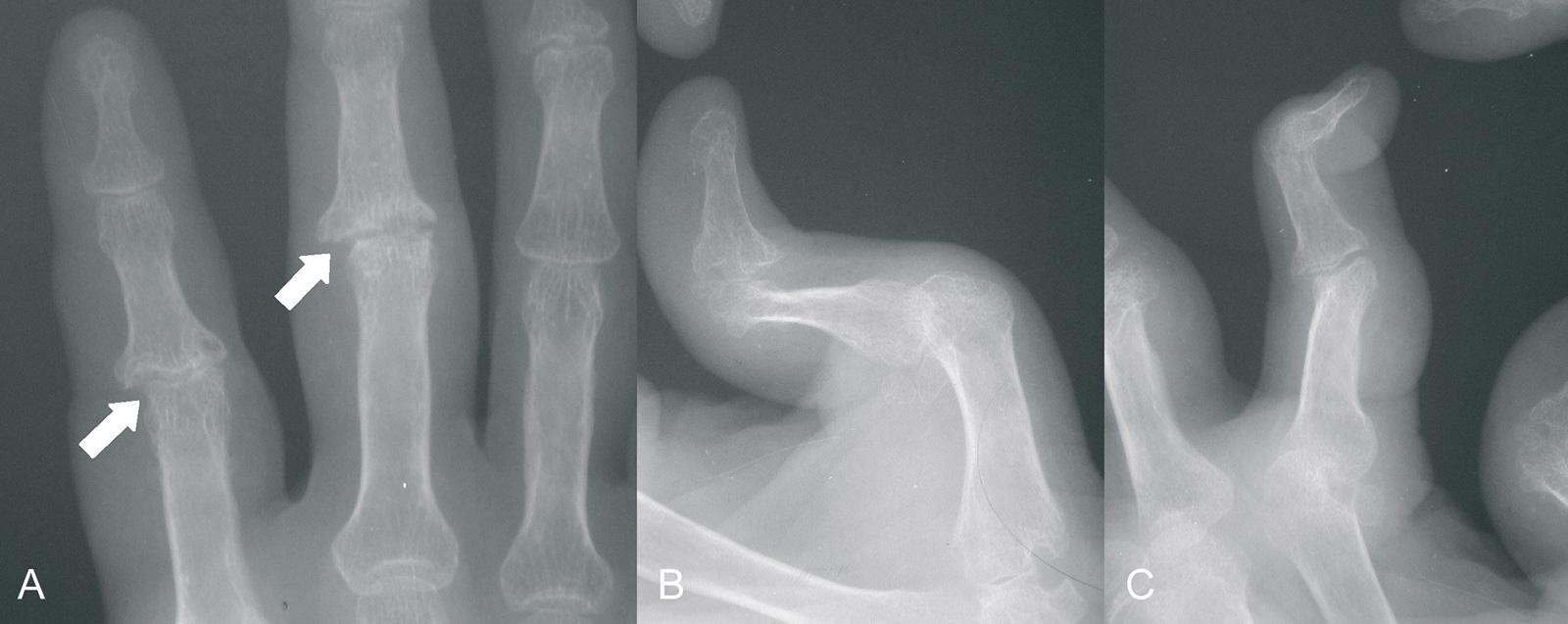 Abb. 1-71: Gelenknahe Arrosionen der Fingergelenke (A), 90-90-Deformität (B), Schwanenhalsdeformität (C)