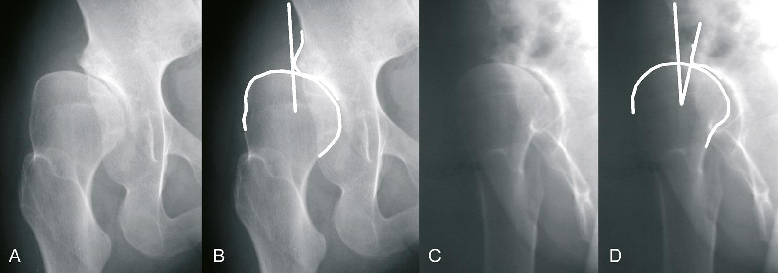 Abb. 1-9: Sekundäre Arthrose nach Hüftdysplasie (A,C). Der CE-Winkel beträgt in der AP-Aufnahme 0 Grad (B) und in der Faux-Pro l-Aufnahme -7 Grad (D)