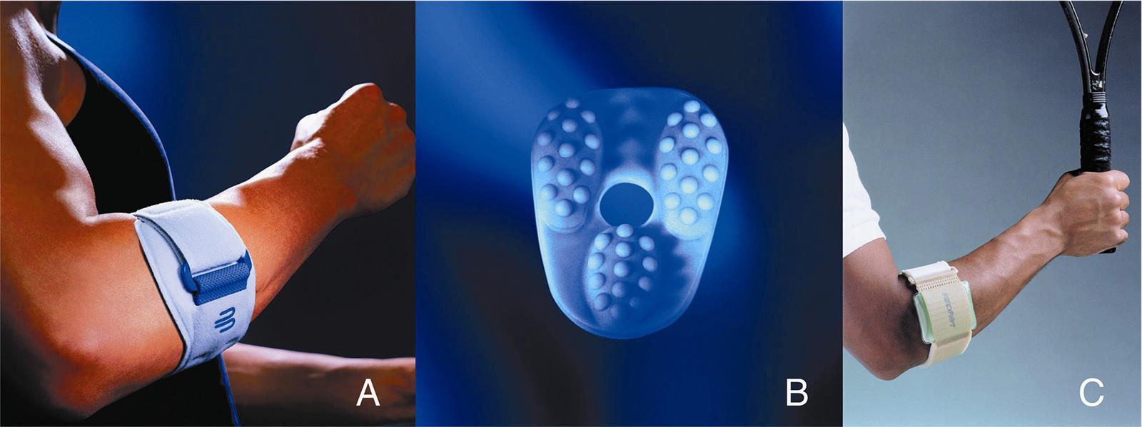 Abb. 10-10: Epipoint (A) zur Therapie der Epicondylitis humeri durch dosierte Kompression (B) der Sehne (mit freundlicher Genehmigung der Bauerfeind Orthopädie GmbH), pneumatisches Armband (mit freundlicher Genehmigung der Aircast Europe GmbH)