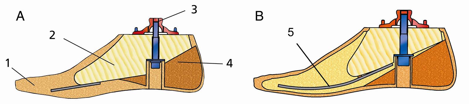 Abb. 10-11: A zeigt einen Solid Ankle Cushion Heel Fuß: 1=Fußformteil, 2=Holzkern, 3=Adapter, 4=Fersenkeil, 5=Vorfußfeder. B zeigt einen Dynamikfuß, der über eine ausgeprägte Vorfußfeder den Push off optimiert (mit freundlicher Genehmigung der Otto Bock H