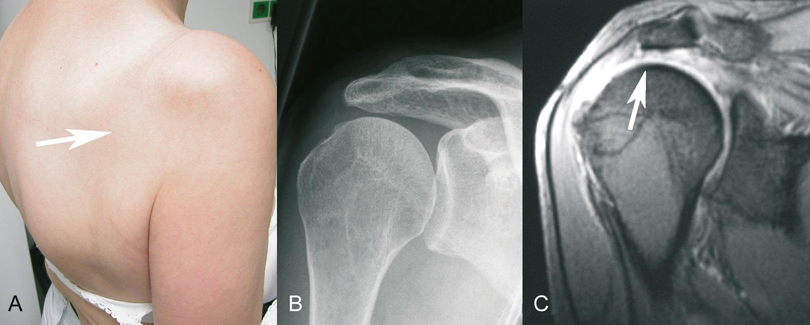 Abb. 2-10: Alte Rotatorenmanschettenruptur mit Atrophie des Supra- und Infraspinatus im klinischen Bild (A), beginnender Hochstand des Humerus im Röntgenbild (B) und Rotatorenmanschettenruptur mit Retraktion der Sehnenenden in der MRT-Bildgebung (C)