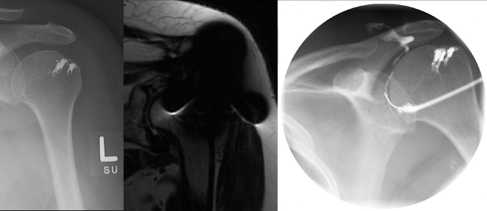 Abb. 2-12: Patient mit einer Rotatorenmanschettenrekonstruktion mit Metall-Nahtankern (A). Die ausgeprägten Artefakte lassen eine Beurteilung des MRT nicht zu (B). Die Reruptur zeigt sich anhand des klassischen Kontrastmittelaustritts in den Subacromialra