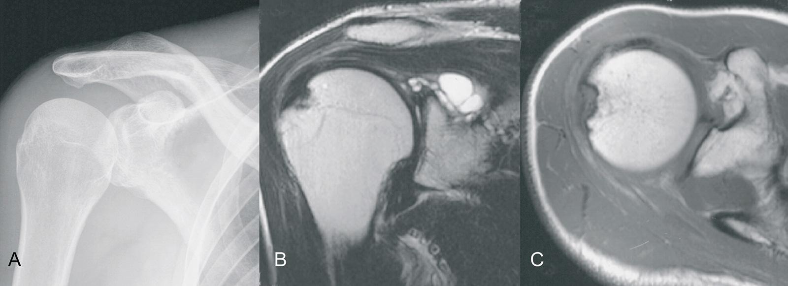 Abb. 2-18: Sekundäres Ganglion bei Vorliegen einer SLAP-Läsion (Röntgenbild (A) und MRT-Bildgebung (B,C) (Eigentum des Instituts für Klinische Radiologie der Universität Münster)