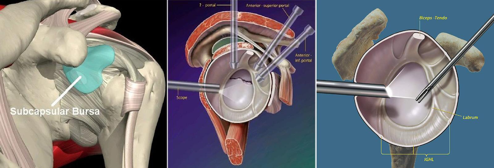 Abb. 2-19: Arthroskopie: Bizepssehne, Labrum und Kapsel