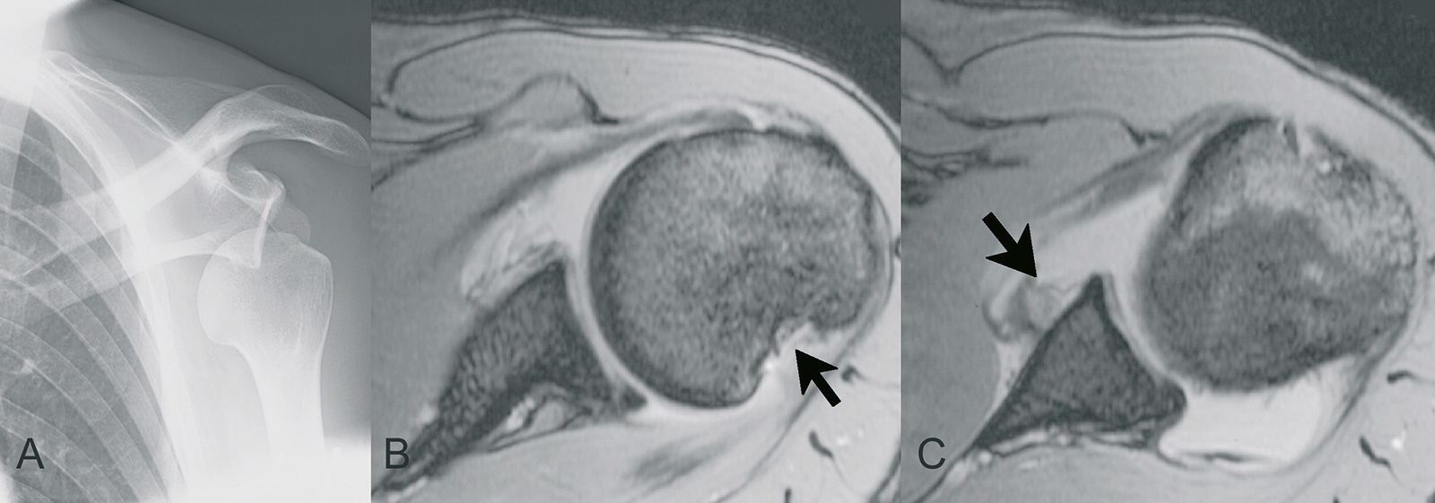 Abb. 2-29: Schulterluxation im AP-Röntgenbild (A), MRT-Bildgebung: Hill-Sachs-Läsion (B) und ALPSALäsion (C)