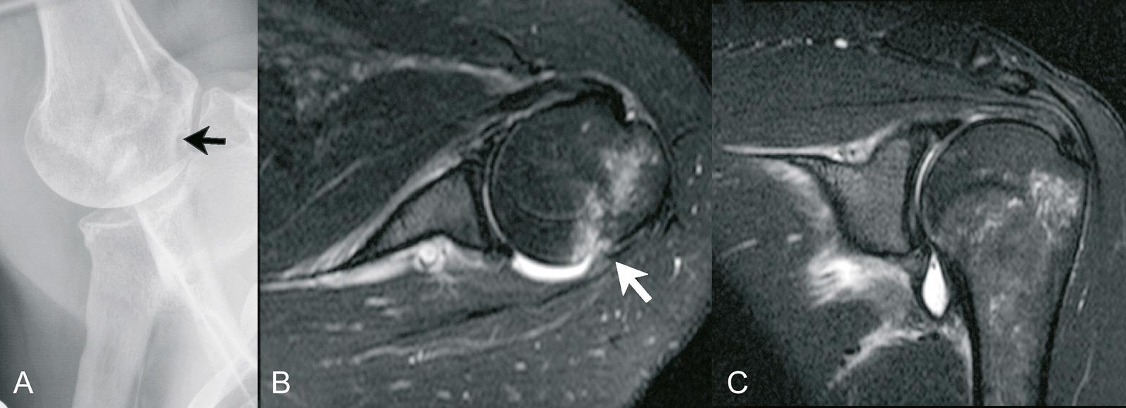 Abb. 2-30: Zustand nach traumatischer Schulterluxation. Die Hill-Sachs-Delle zeigt sich in der Stryker-Aufnahme (A), sowie in der MRT-Bildgebung (B,C) (Eigentum des Instituts für Klinische Radiologie der Universität Münster)