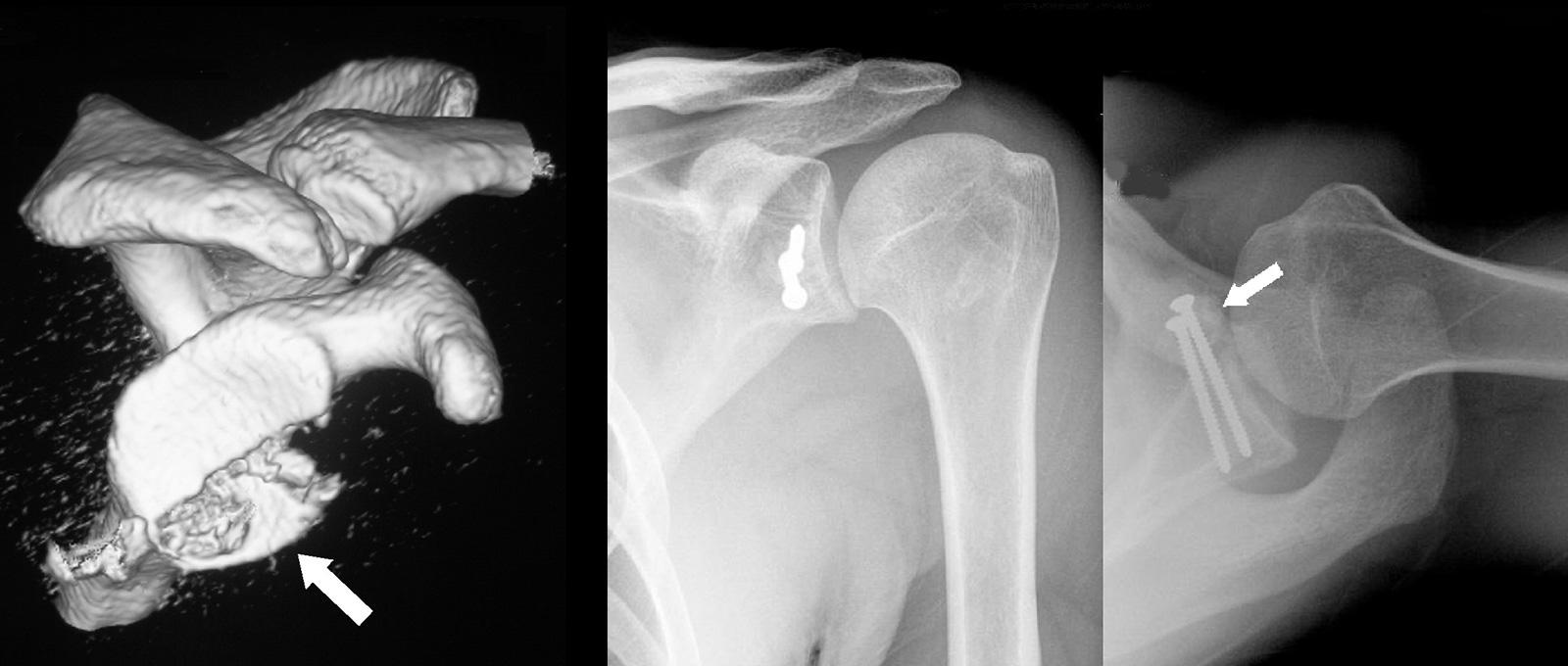 Abb. 2-31: Zustand nach einer schweren traumatischen Schulterluxation mit einer großen knöchernen Bankartläsion (intraartikuläre Glenoidfraktur) in der Computertomografie (A). Bei einer ausgeprägten knöchernen Bankartläsion ist oft eine Refixierung des kn