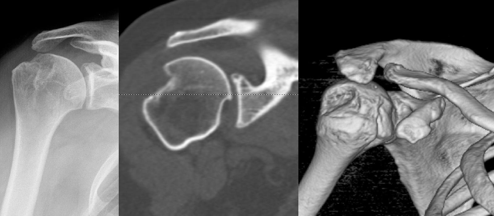 """Abb. 2-32: Bei einer ausgeprägten Hill-Sachs Läsion kann es mit zunehmender Außenrotation und Elevation des Arms zu einer Luxation (""""engagement"""") in den Hill-Sachs-Defekt kommen. Die prä- operative (Röntgen (A) und CT-Bildgebung (B) ggf. mit 3-D Rekonstru"""