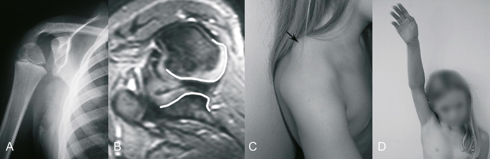 """Abb. 2-33: chronische hintere Schulterluxation: """"lightbulb sign"""" im Röntgenbild (A), Dysplasie des Humeruskopfes und Glenoids in der MRT-Bildgebung (B), Prominenz des Coracoids und Acromions (C), verhältnismäßig gute Funktion (D)"""