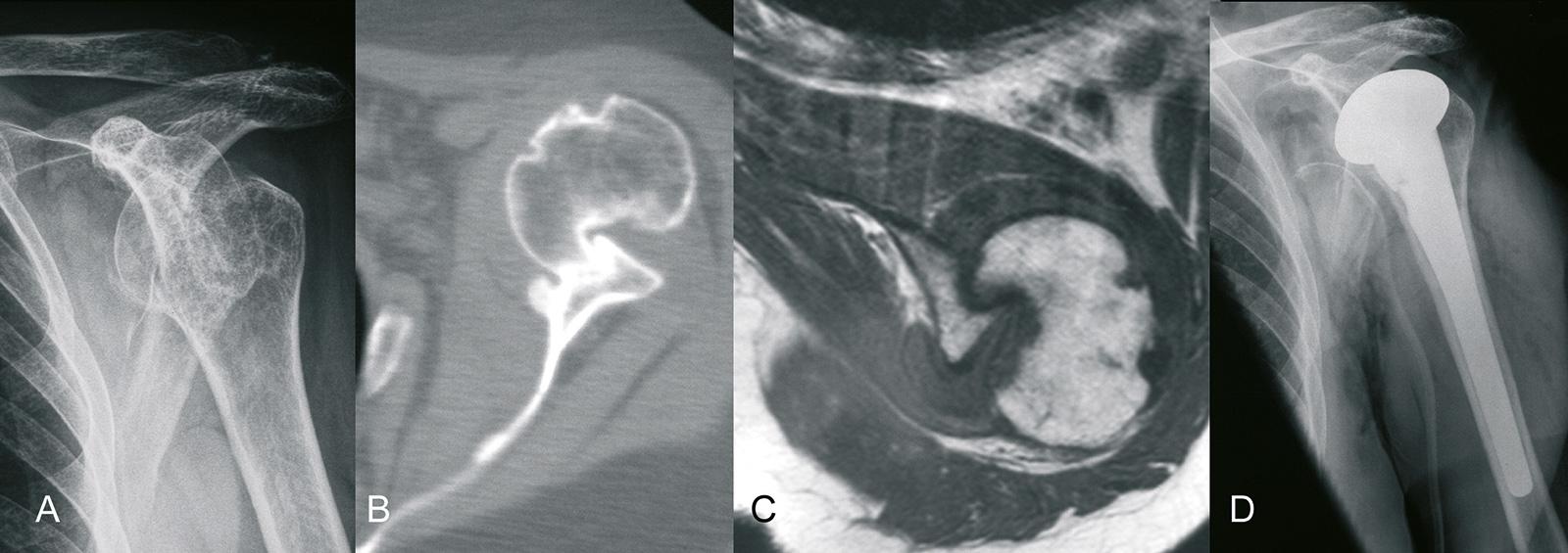 Abb. 2-36: Chronische verhakte vordere Schulterluxation: natives Röntgenbild (A), ausgedehnte Hill Sachs Delle in der CT- und MRT-Bildgebung (B,C), nach Implantation einer Prothese (D) (Eigentum des Instituts für Klinische Radiologie der Universität Münst