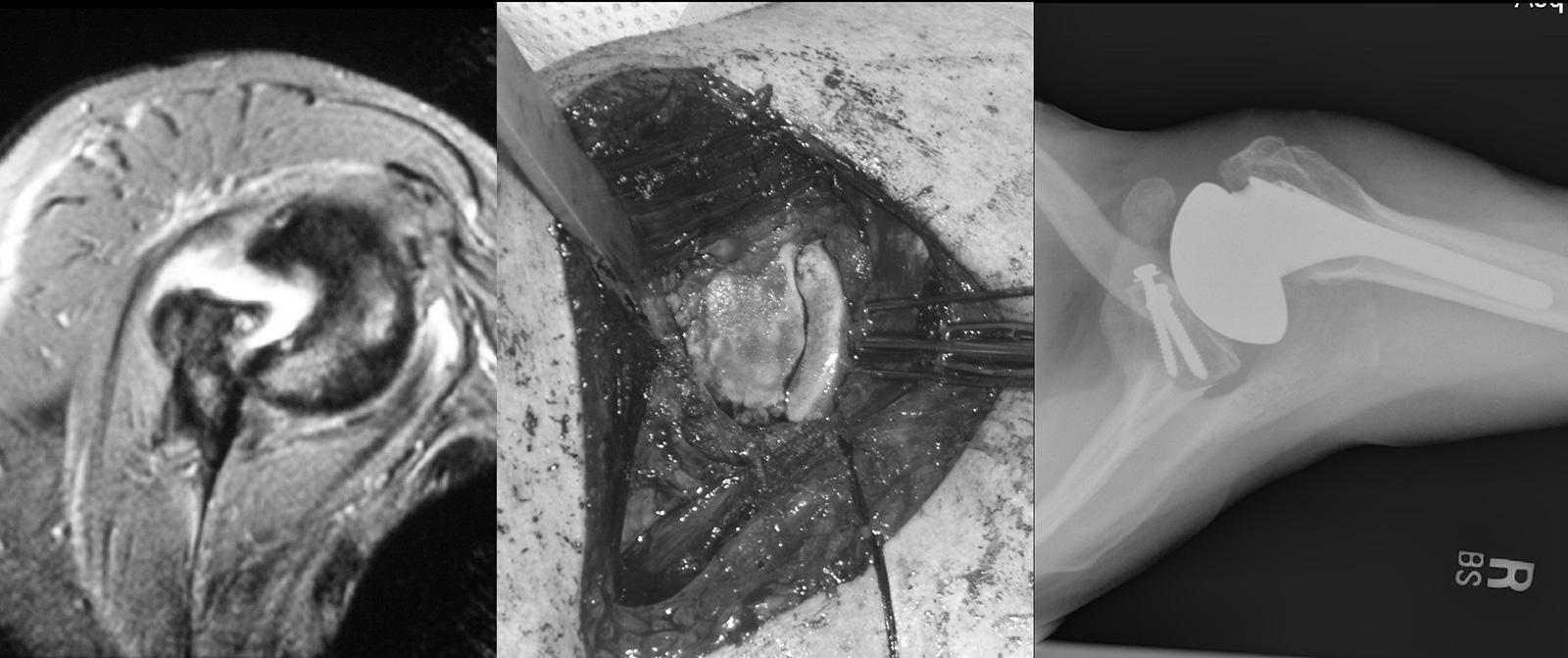 Abb. 2-37: Chronisch verhakte vordere Schulterluxation: MRT-Bildgebung (A), Rekonstruktion des anterioren Defekts mit Teilen des Humeruskopfes (B), postoperatives Röntgenbild nach Defektrekonstruktion und Schulterhemiprothese (C)