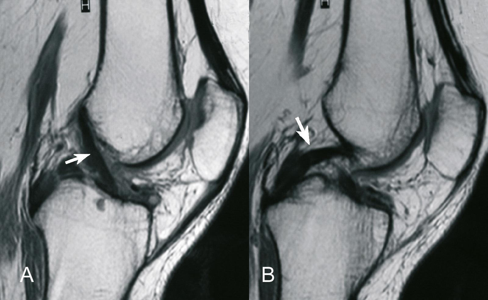 Abb. 2-41: MRT des Kniegelenks mit Darstellung des vorderen (A) und hinteren Kreuzbandes (B)