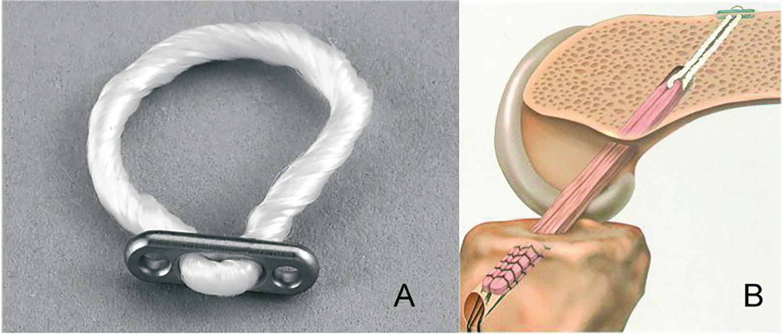 Abb. 2-43: Fixierung des Sehnengrafts im femoralen Bohrkanal mit einem Endobutton (Smith & Nephew GmbH)