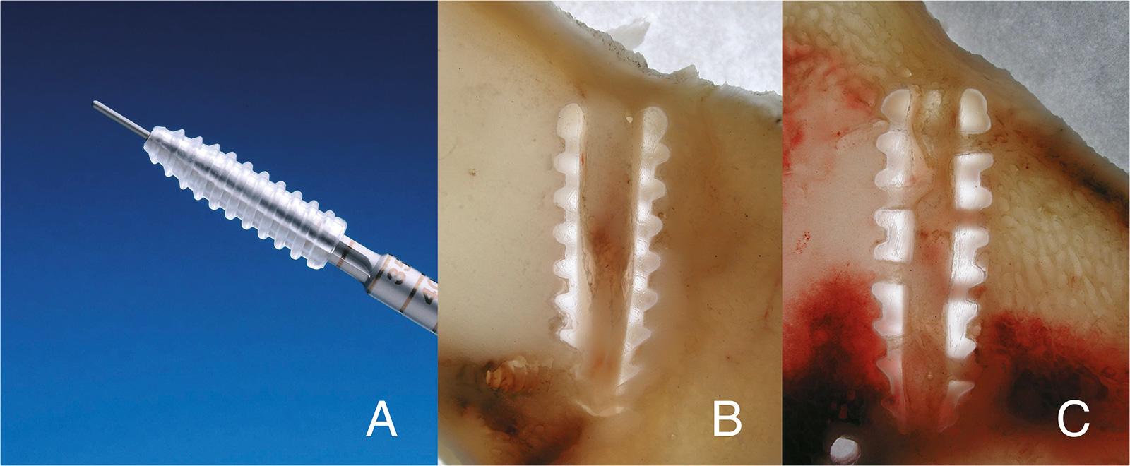 Abb. 2-44: Bioresorbierbare Interferenzschraube (A), das knöcherne Einwachsverhalten wird durch die Hohlschraube verbessert (B,C) (Karl Storz GmbH & Co KG)