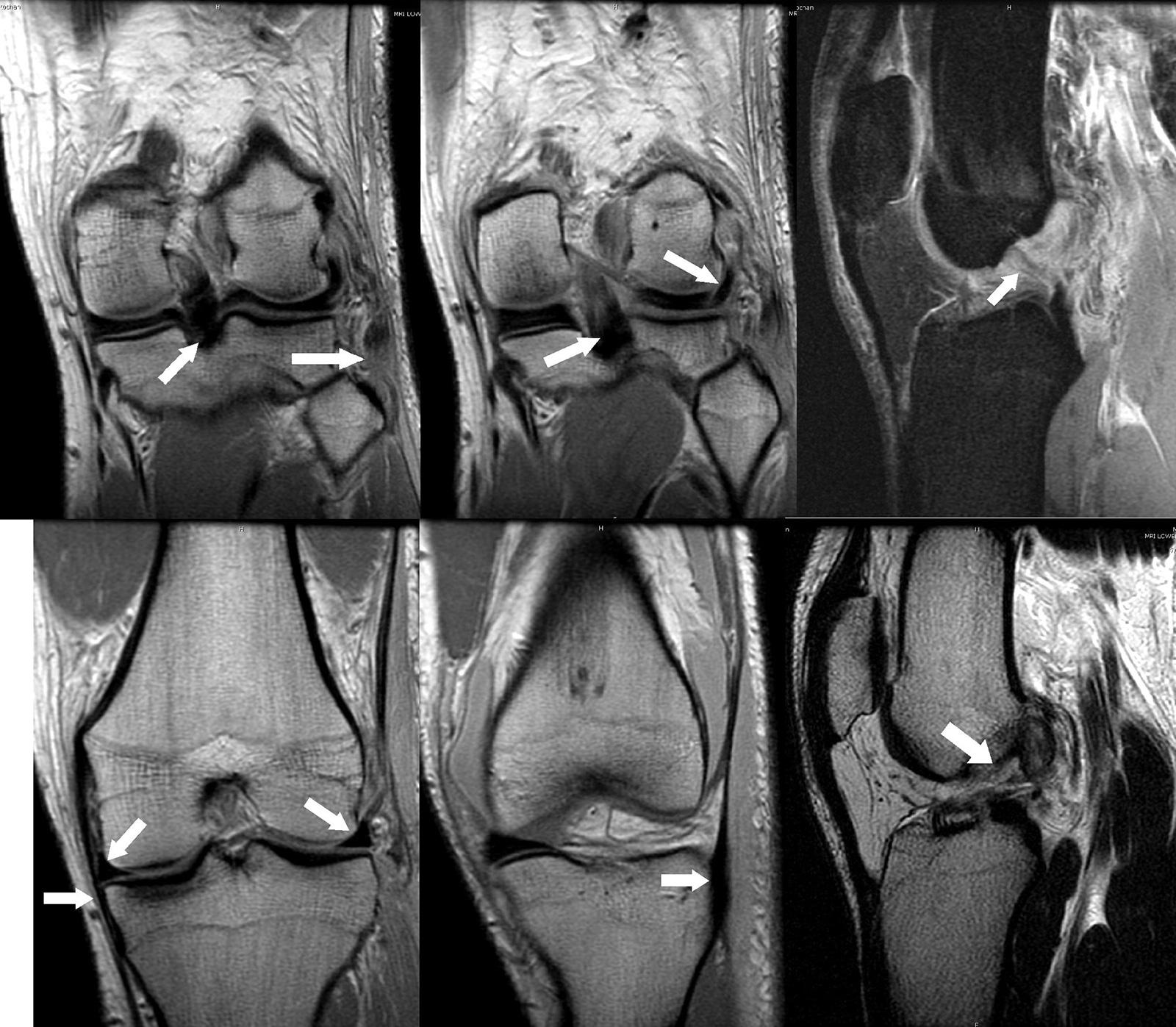Abb. 2-47: MRT zur Beurteilung der Weichteilverletzung nach Knietrauma: intakter Ansatz des hinteren Kreuzbands und partielle Ruptur des Ansatzes der Bicepssehne und des Kollateralbandes (A), intakter Ansatz des hinteren Kreuzbandes und Verlauf der Poplit