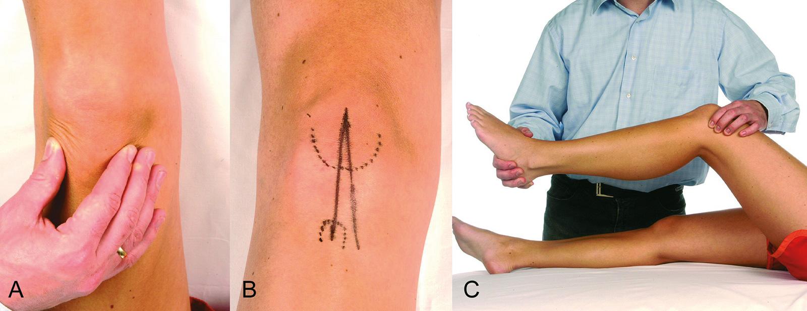 Abb. 2-65: Kniegelenksuntersuchung: Palpation von Patella (A), Q-Winkel (B), Patellaführung und Beurteilung eines retropatellaren Krepitus (C)
