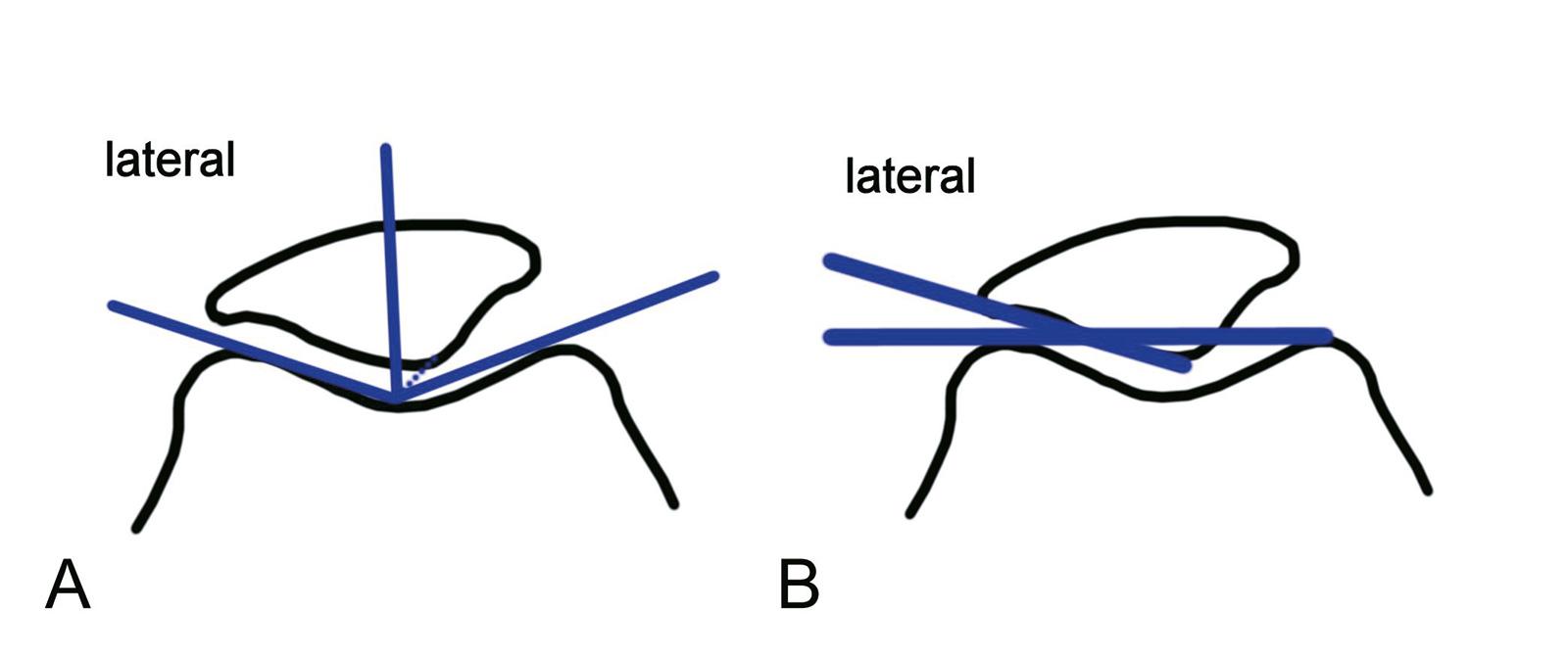 Abb. 2-66: Verbindung zwischen Patellafirst und tiefster Stelle des Sulcus intercondylaris liegt medial der Winkelhalbierenden des Sulcuswinkels (A), Laurin-Winkel (B): Winkel einer Tangente an die laterale Facette der Patella und Verbindungslinie zwische
