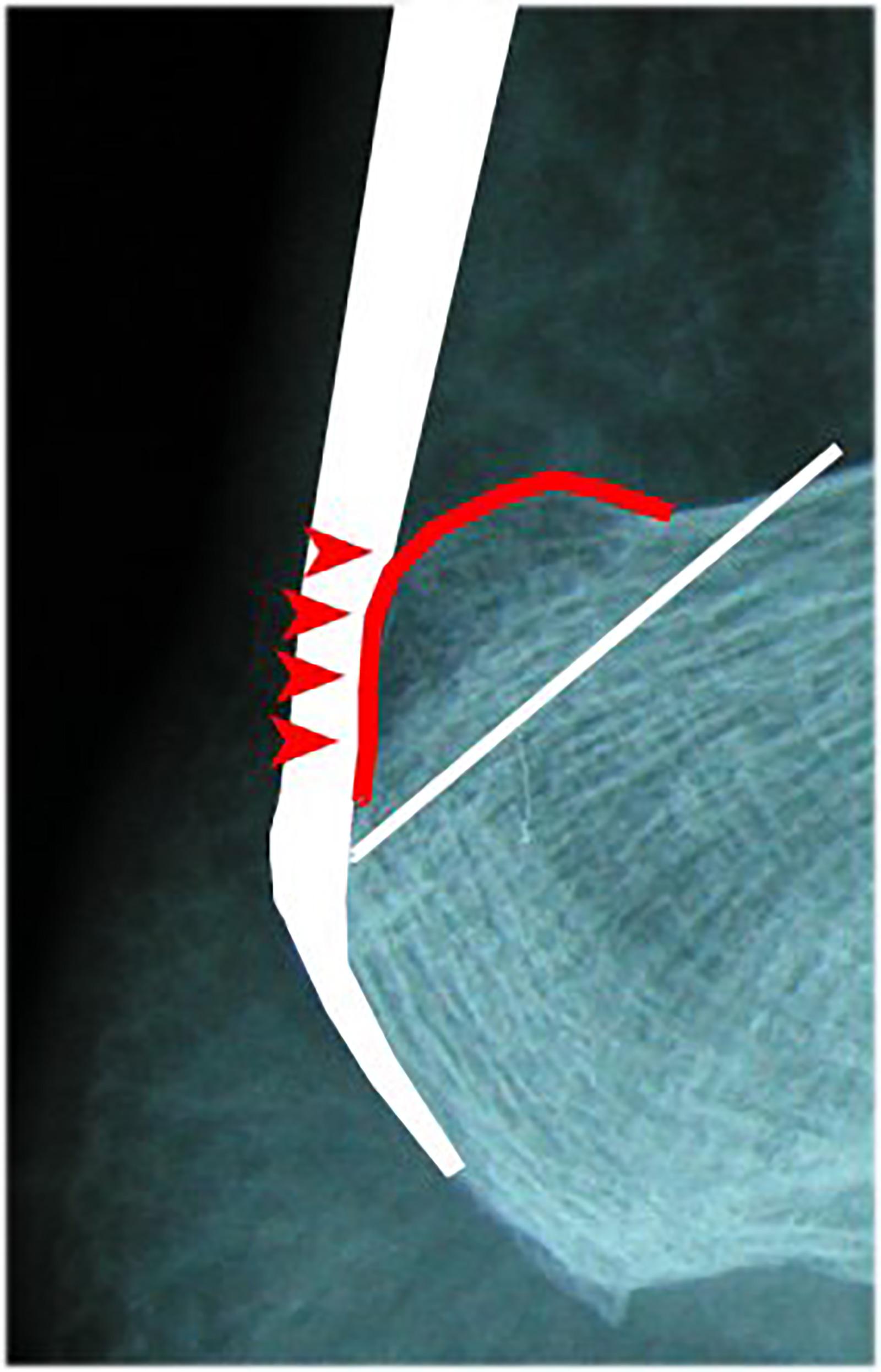 Abb. 2-70: Patient mit einer Bursitis tendinis calcanei. Operation mit Entfernung der Bursa und Abtragung des prominenten Calcaneus (weiss: Achillessehne)